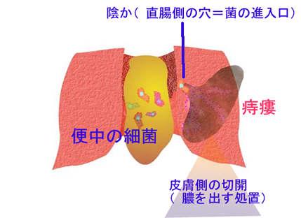 周囲 膿瘍 肛門