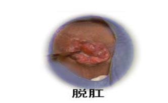 肛門癌 | [組圖+影片] 的最新詳盡資料** (必看!!) - yes-news.com