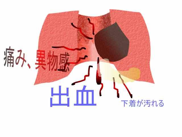 いぼ 痔 画像